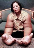 ქალი რომელსაც გენეტიკური დაავადების გამო წარმოუდგენლად დიდი ხელები აქვს.