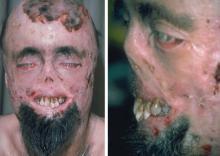 ყველაზე საშინელი და უცნაური დაავადებები, რომლებიც შეგაშფოთებთ
